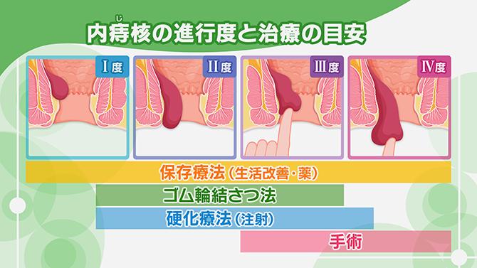 いぼ 痔 ぷにぷに いぼ痔(脱出) | おしりの症状チェック |