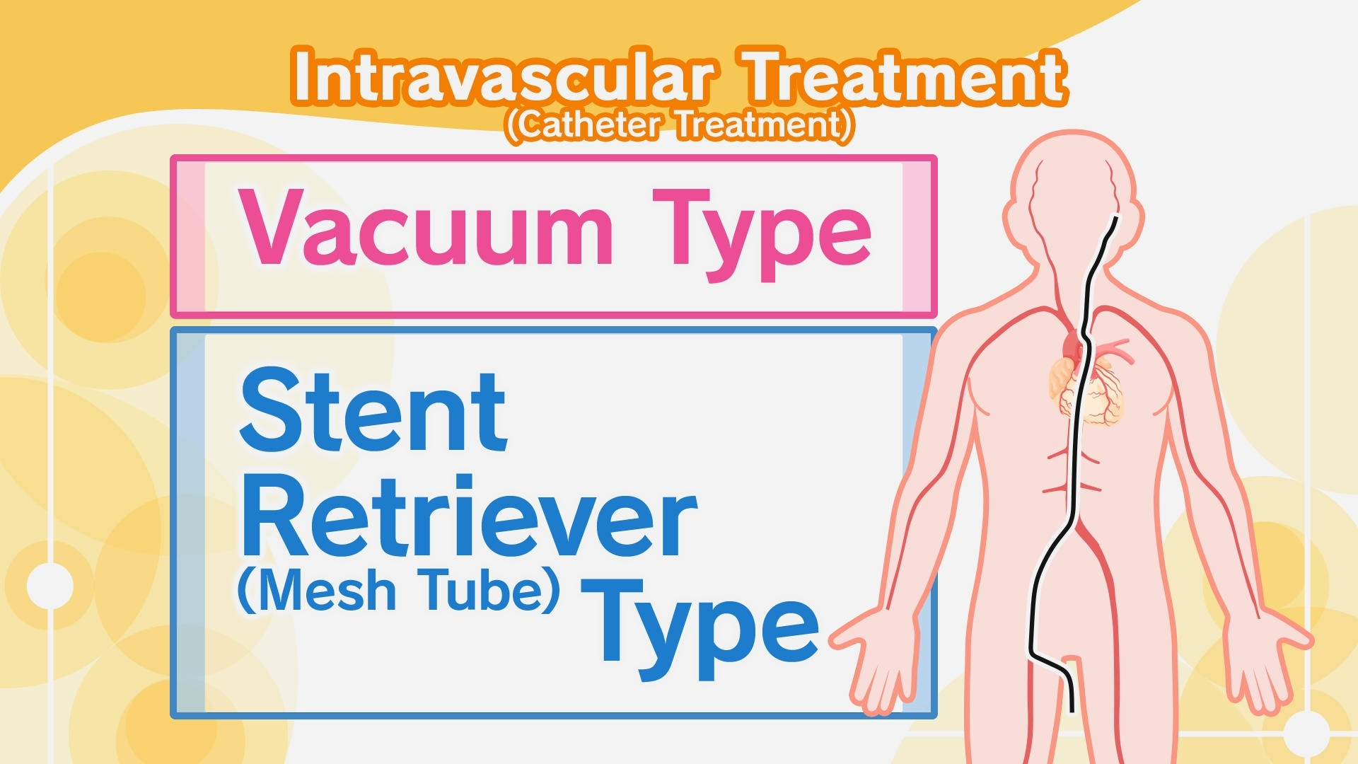 intravasculartreatmenttype_3