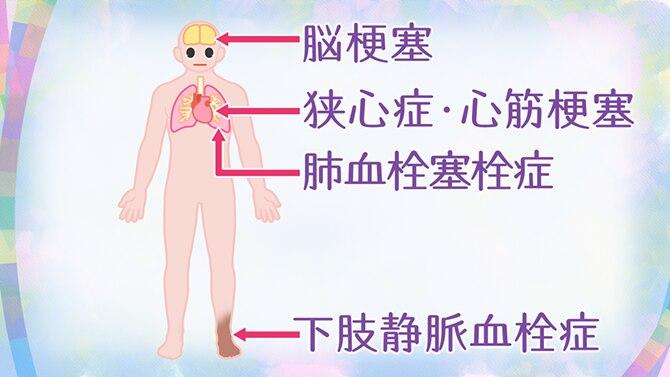 痛い 肺 コロナ ウイルス が 風邪と肺炎(新型コロナウイルス感染)の見分け方・症状|リーレクリニック大手町