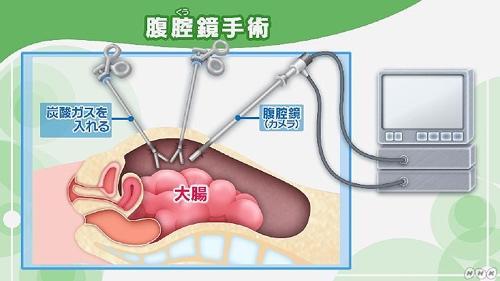 NHK健康チャンネルで確かな医療・健康情報を大腸がんの手術 開腹手術と腹腔鏡手術の特徴・入院期間・費用