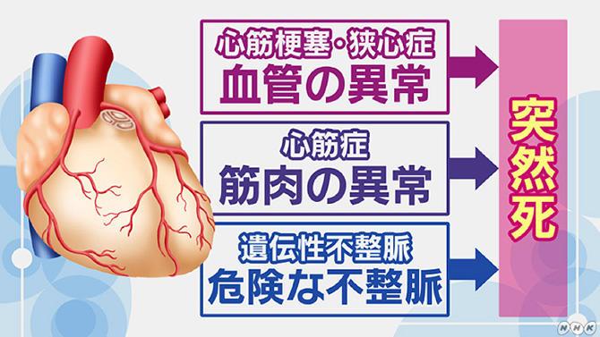 女性の心筋梗塞症状