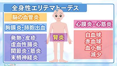 シート チェック 膠原 症状 病