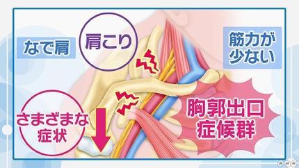 が 痺れる 左腕