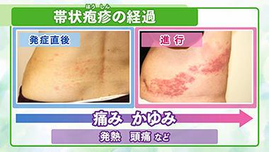 早めに対処 帯状疱疹(ほうしん)の症状は?