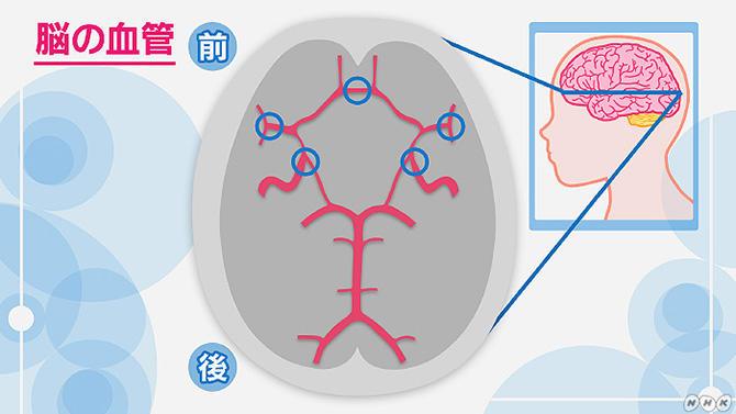 瘤 脳 動脈 脳動脈瘤とは? 手術などの治療方法について