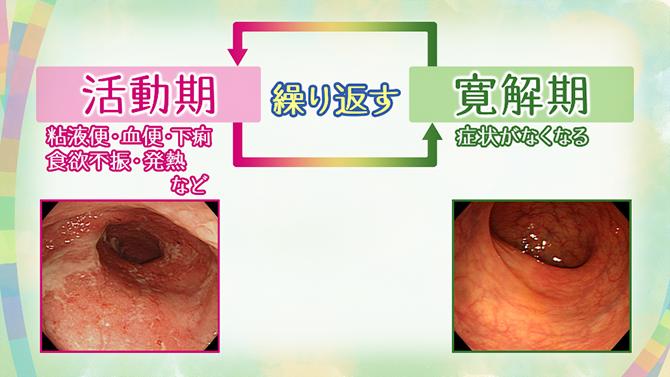 性 炎 なら お 大腸 潰瘍