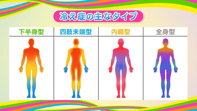 主な冷え性のタイプ。下半身型、四肢末端型、内臓型、全身型