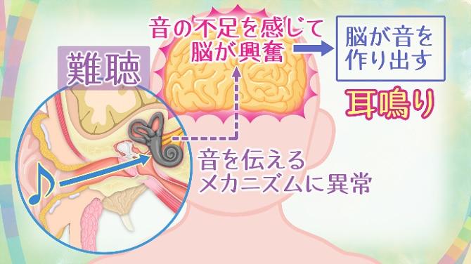 理由 耳鳴り が する 耳鳴りセルフ診断 耳の専門医が[耳鳴りの原因、高音と低音の違い、治し方]を全解説 カラダネ