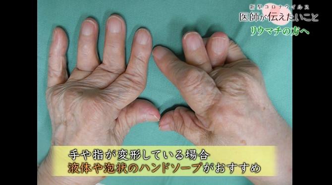 リウマチの方へ 新型コロナウイルスの重症化リスクと注意点 | NHK健康 ...