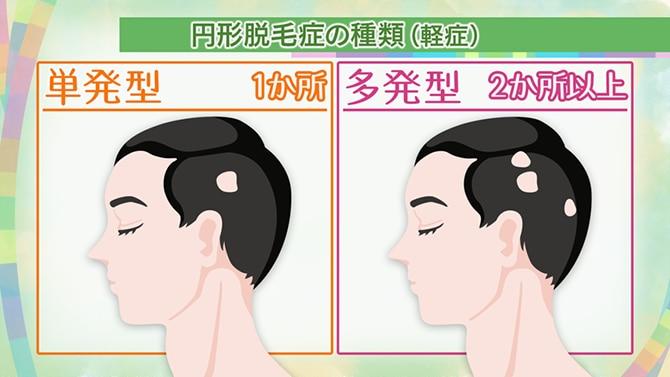 症 円形 原因 脱毛