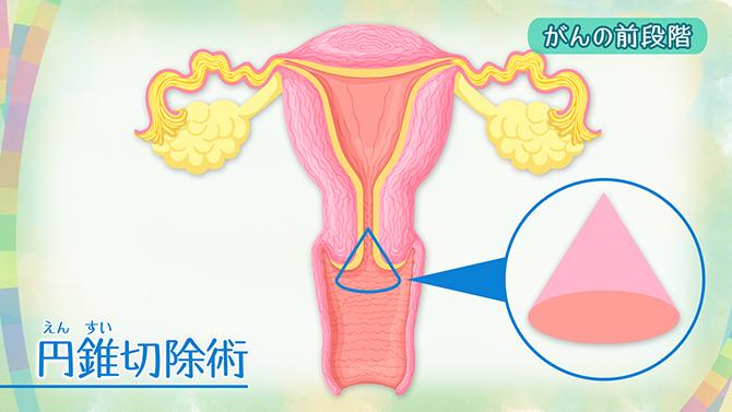 NHK健康チャンネルで確かな医療・健康情報を子宮頸がんの症状・早期発見のポイント・ワクチン・治療法(早期がんで妊娠希望の場合や放射線、抗がん剤治療)