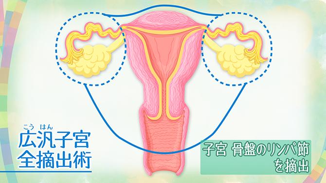 ん 初期 ブログ 宮頸 症状 が 子