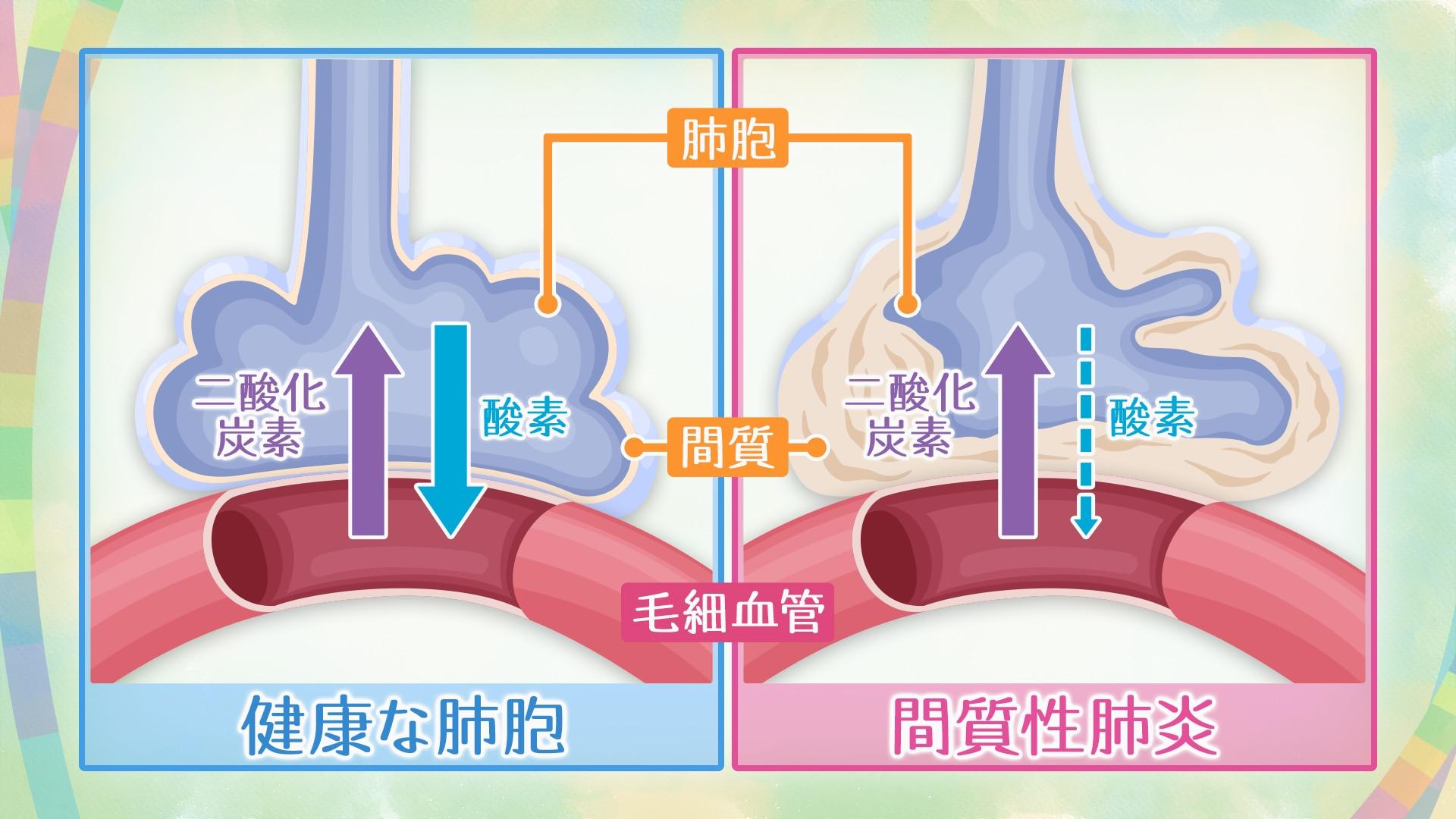 性 間 治る 質 肺炎