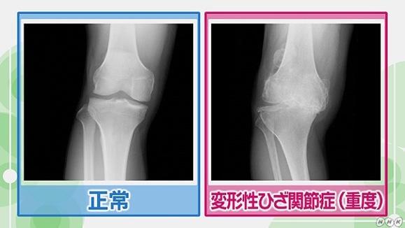 膝 の お 皿 が 痛い