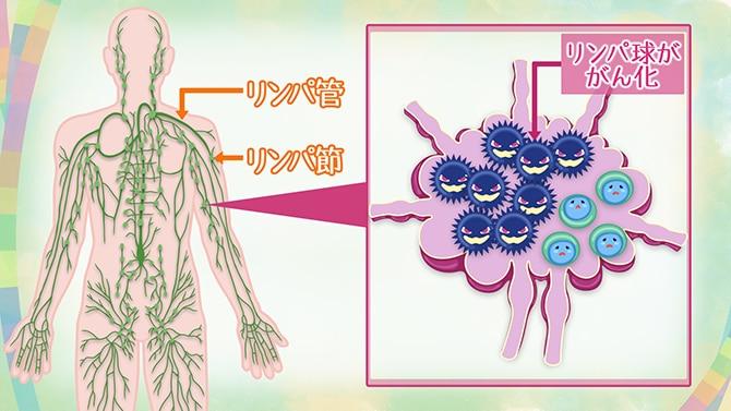 リンパ 痛い 脇 新型コロナワクチンによる,わきのリンパ節の腫れについて Vaccination