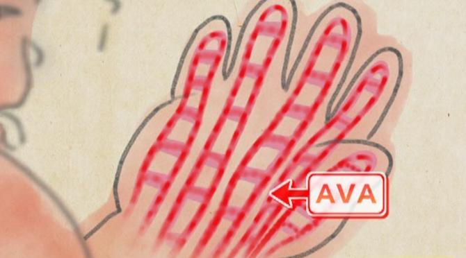 AVA(動静脈吻合)