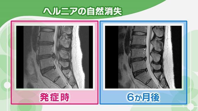 椎間板ヘルニアの治療法があります