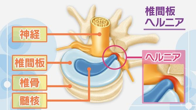 椎間板ヘルニア症状チェック】馬尾型と神経根型で異なる危険度 | NHK ...