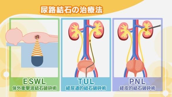 尿路結石の治療法