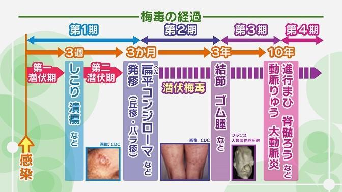 急増する梅毒 原因や感染経路とは?症状・予防・治療法を徹底