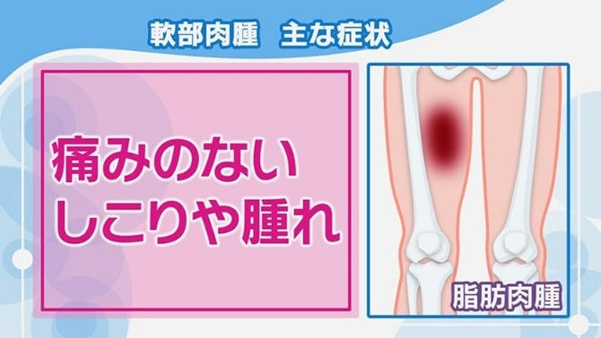 骨 肉腫 初期 症状