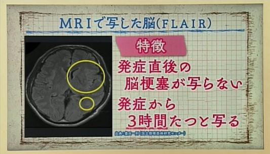 女性 脳 前兆 梗塞