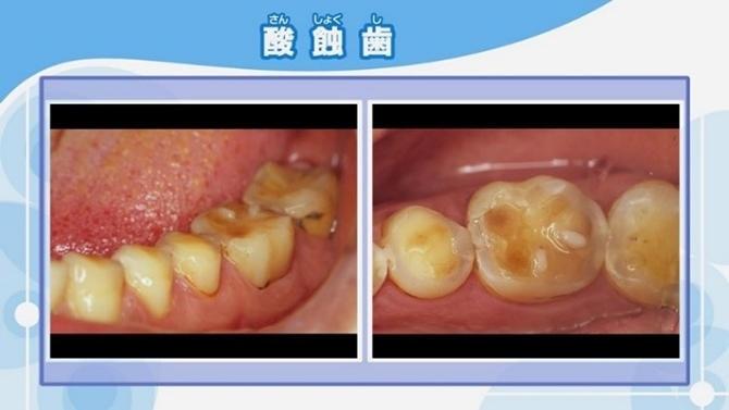 再生 歯 エナメル 質