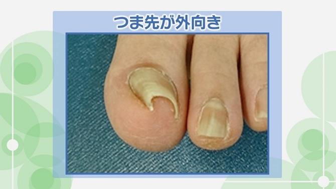 巻き 爪 治す 方法