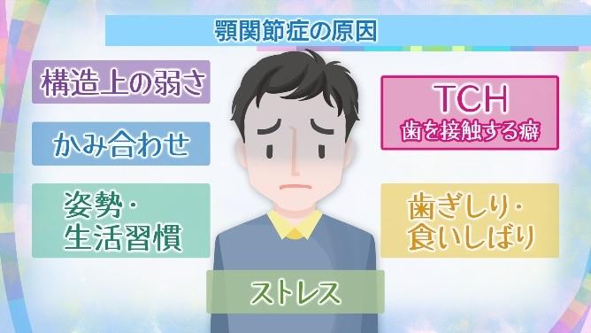 痛 額 何 科 症 関節