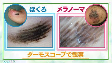 が ん ほくろ 皮膚