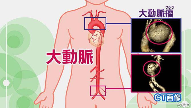 症状 瘤 初期 腹部 大動脈 腹部大動脈瘤の特徴・症状と治療法について【医師監修】救急病院一覧あり