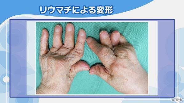 リウマチ の 初期 症状