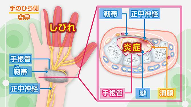 しびれ 左手 脳 梗塞 小指