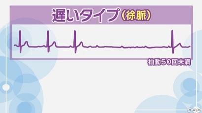 脈拍 数 分間 の 1