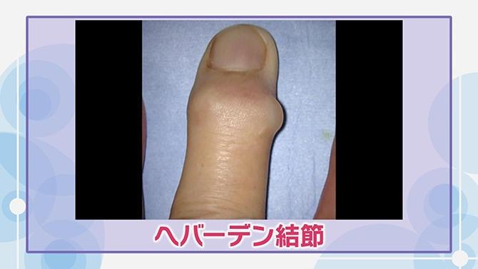 中指 指 足 の 痛い