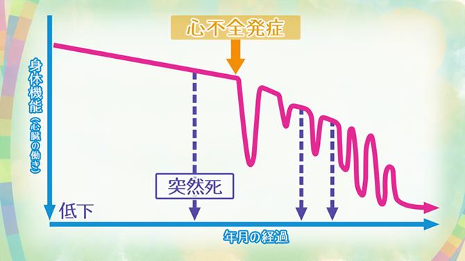 心不全4つのステージ 症状のない予備群から進行する | NHK健康チャンネル