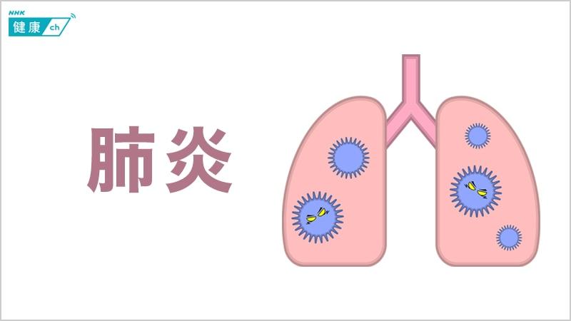 肺炎 乾湿 性